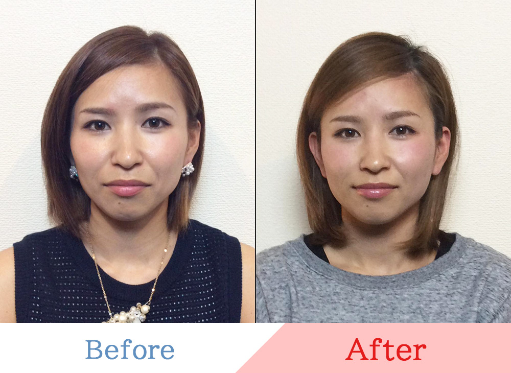 bfore&after2