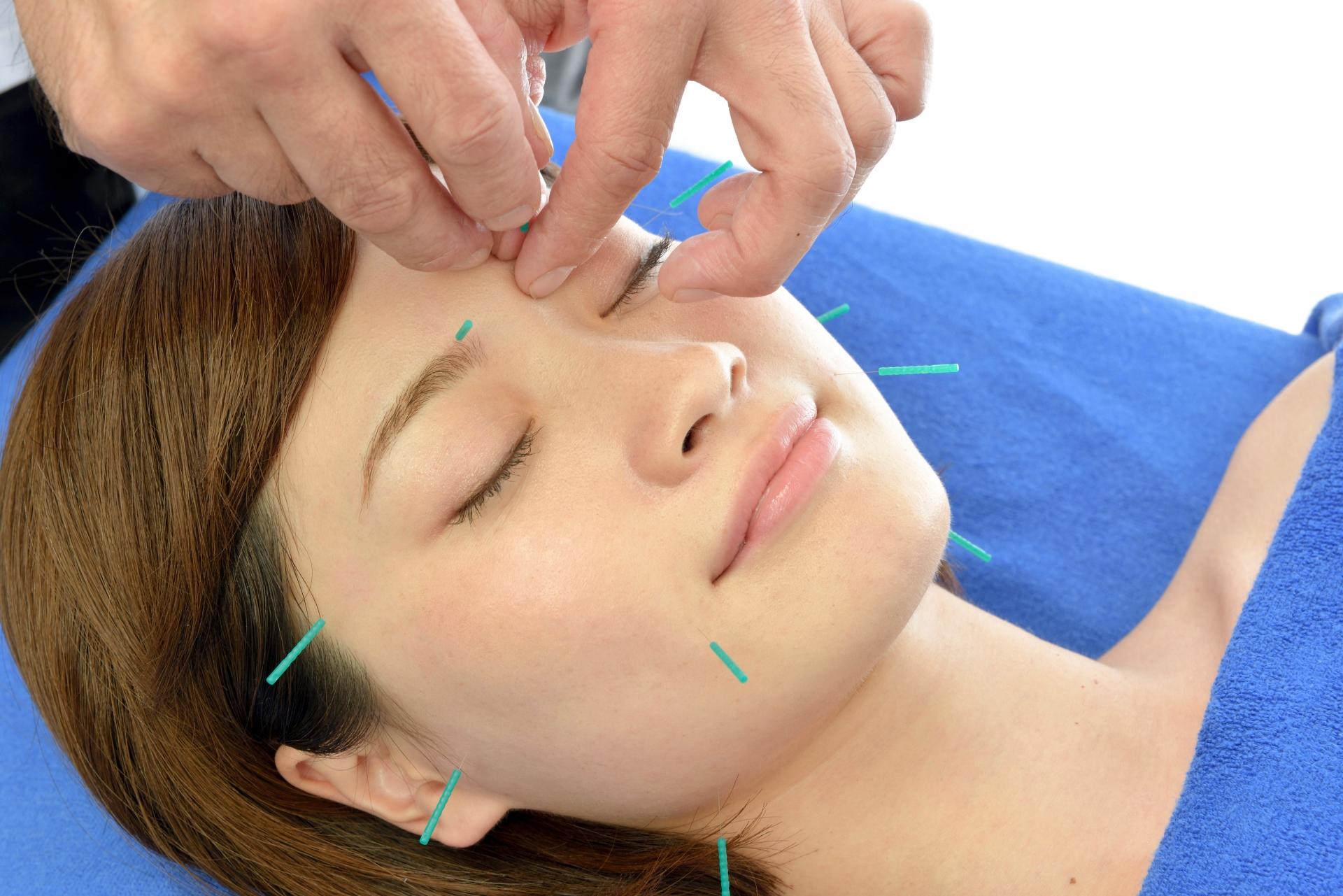 顔面神経麻痺治療