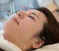 顔のトラブルでわかる体の症状